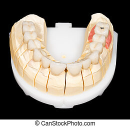 pont, dentaire, zirconia