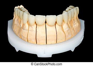 ponte, dentale, ceramica