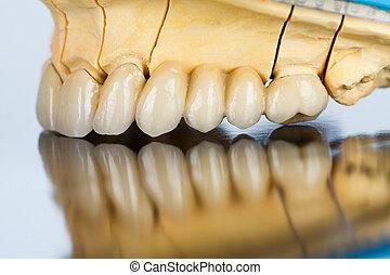 ponte, dentale, ceramica, -, denti