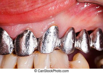 ponte, dentale, metallo, base