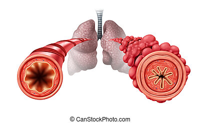 Popcorn lung condition concept or obliterative bronchiolitis disease as obstructed bronchial tubes constricted caused by vaping respiratory muscle tightening and swelling with 3D illustration elements.