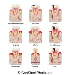 Popular teeth diseases icons in flat design, vector medical illustration. Dental common problems infographic elements isolated on white background. Healthy and unhealthy teeth set of anatomical icons.