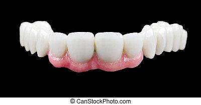 Porcelain teeth - The porcelain bridge on isolated black...
