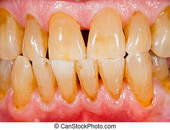 Porcelain, zirconia teeth in human mouth - Close up photo of...