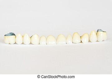 porselein, kroon, en, brug, (dentistry), dentaal, schaaltje, kunstgebit