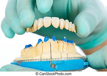 porselein, teeth, -, dentaal, brug