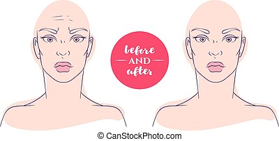 Portrait of a woman before and after with cosmetic defects.