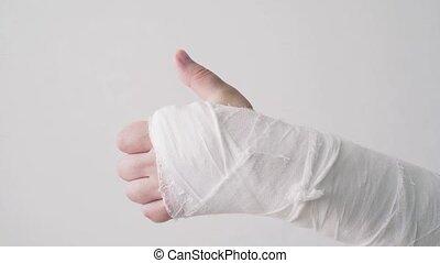 positif, récupération, gypse, spectacles, fracture, thumb., ...