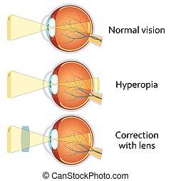 positivo, hyperopia, corrected, lens.