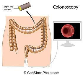 postępowanie, eps8, colonoscopy