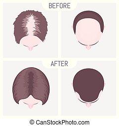 poszter, alopecia, női, hím, orvosi, nevelési, set., motívum