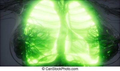 poumons, radiologie, humain, examen