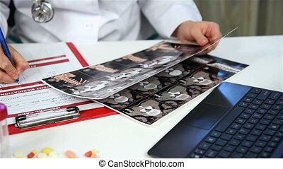 pozwy, skandować, dane, rentgenowski, doktor