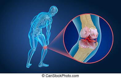 précis, illustration, medically, jointure, genou, ostéoporose, 3d