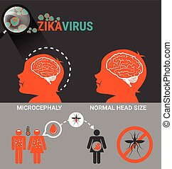Pregnant Women with baby microcephaly and Zika Virus...