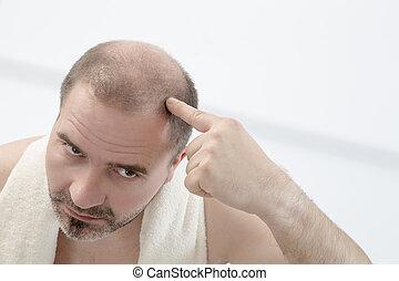 prematuro, calvizie, uomo, 40s, sfondo bianco