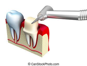 preparazione, corona, dente