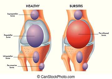 prepatellar, bursitis