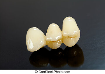Highly aesthetic emax pressed ceramic bridge / crown.