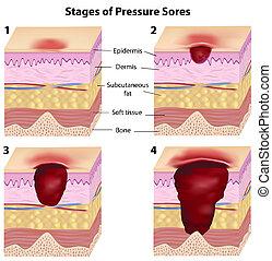 pression, étapes, sores, eps8