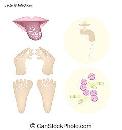prevenzione, batterico, malattia, infezione, trattamento