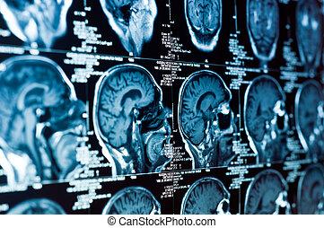 primer plano, de, un, exploración del ct, con, cerebro, y, cráneo, en, él