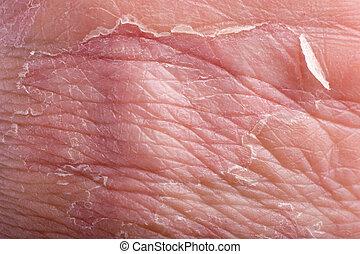primer plano, eczema