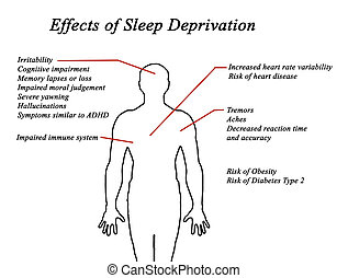 privazione, sonno, effetti