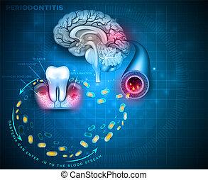 problèmes, maladie, gencive, cerveau, periodontitis, cause