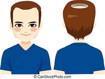 problem, łysy człowiek