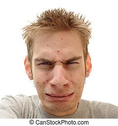 problema, acne, adolescente