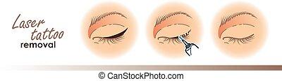 procédure, eyeliner, illustration.laser, icônes,...
