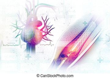 procédure, placer, balloon, stent, angioplastie