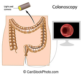 procedimento, eps8, colonoscopy