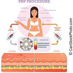 procedimiento, vector, diagrama, prp, scheme., cosmetología...