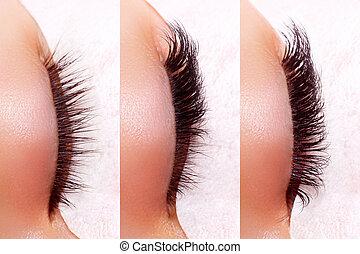 procedure., ojos, extensión, comparación, pestaña, after.,...