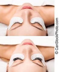 procedure., su, occhio donna, eyelashes., estensione, ciglio...
