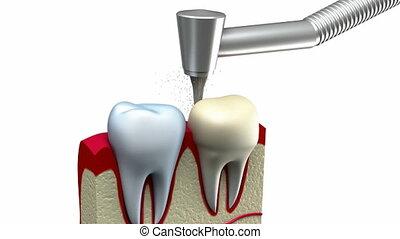 proces, korona, stomatologiczny, instalacja
