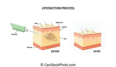 process., liposucción