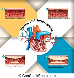 Process of Arteriosclerosis poster