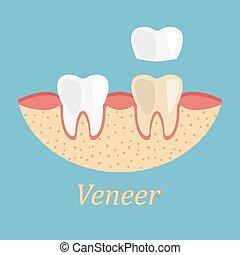 processo, restoration., stomatology, prótese, dentes, ...