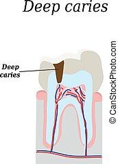 profundo, aislado, ilustración, diente, vector, decay.,...