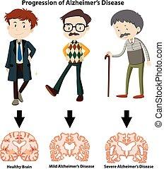progression, krankheit alzheimer
