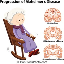 Progression of alzheimer's disease illustration