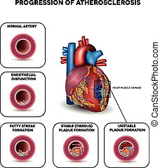 Progression of Atherosclerosis till heart attack. Heart muscle damage due to blood clot in the artery. Very detailed illustration of fatty streak formation, white blood cells infiltration, blood clot formation etc.
