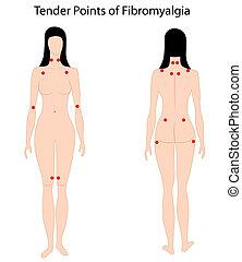 proposta, fibromyalgia, pontos, eps8