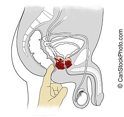 prostate cancer - manual examination and cross-sectional...