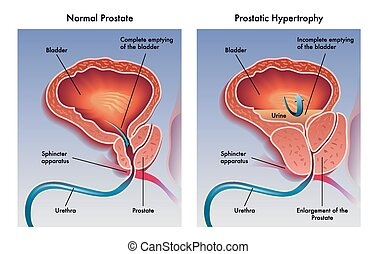 Illustration of the effects of prostatic hypertrophy