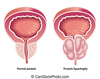 Prostatic hypertrophy - Illustration of the effects of...