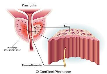 Prostatitis - medical illustration of the effects of...